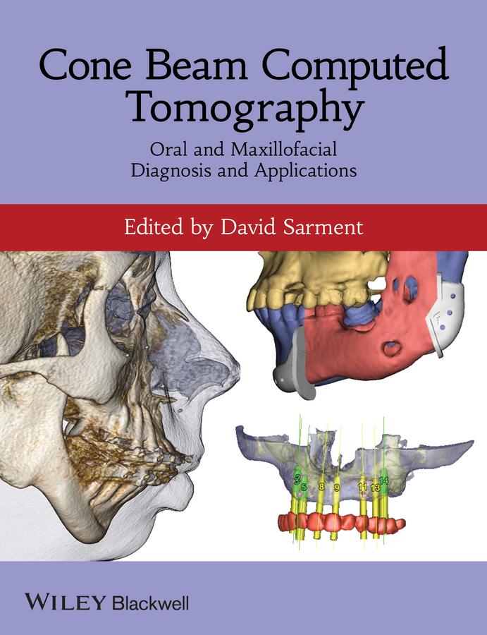 Cone Beam Computed Tomography. Oral and Maxillofacial Diagnosis and Applications