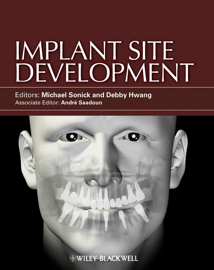 Sonick Michael Implant Site Development site