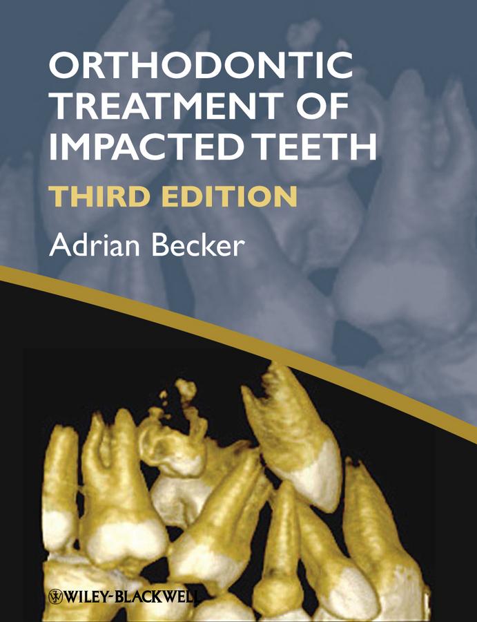 Adrian Becker Orthodontic Treatment of Impacted Teeth