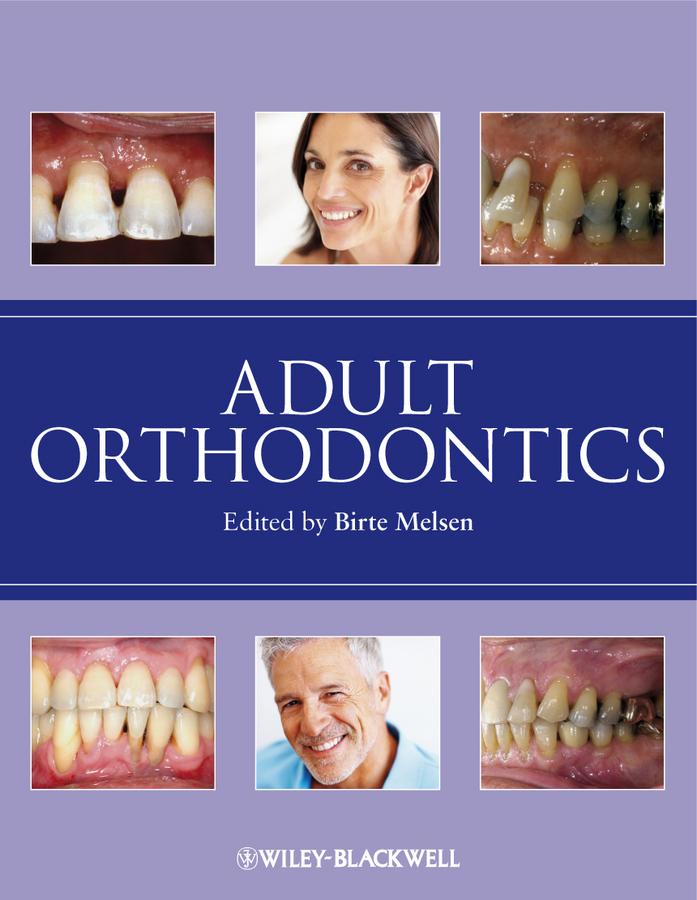 лучшая цена Birte Melsen Adult Orthodontics