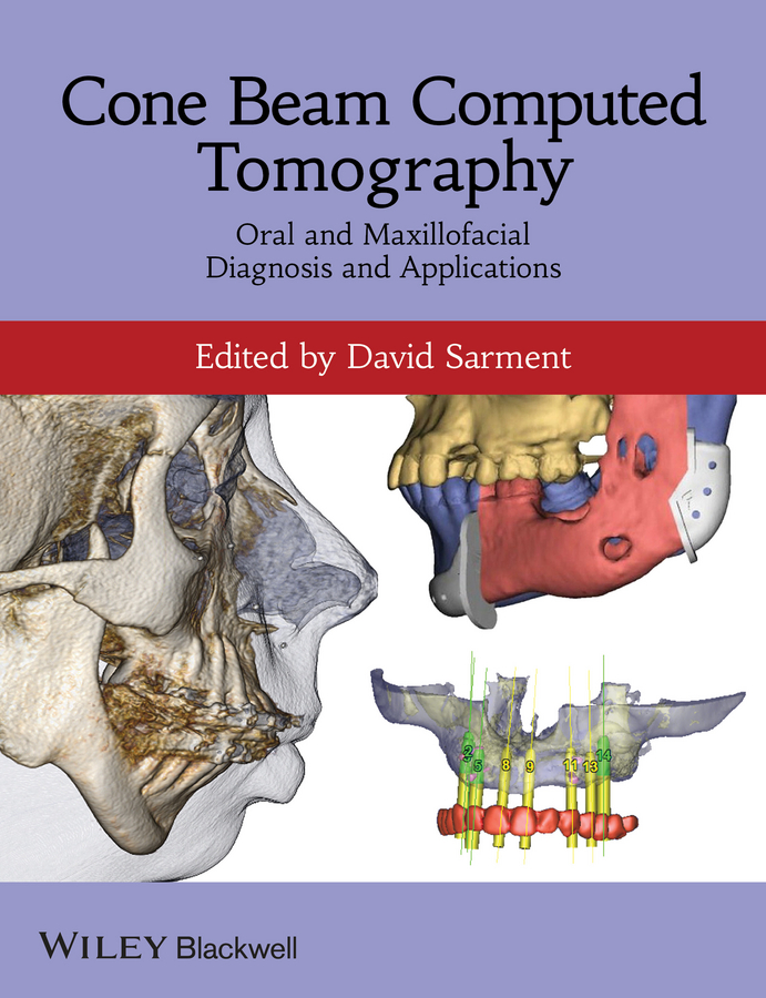 лучшая цена David Sarment Cone Beam Computed Tomography. Oral and Maxillofacial Diagnosis and Applications