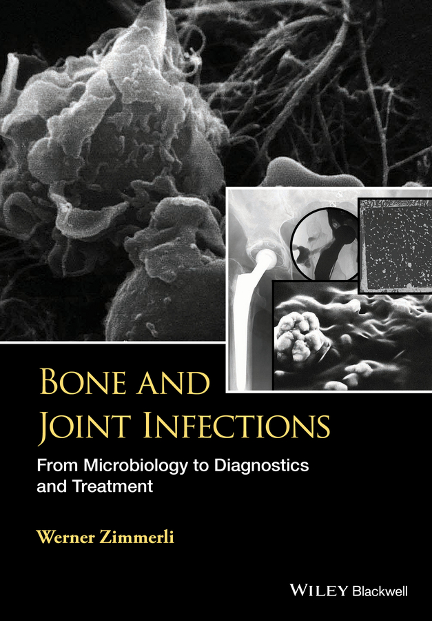 W. Zimmerli Bone and Joint Infections. From Microbiology to Diagnostics and Treatment bacterial contaminated stethoscopes a source of nosocomial infections