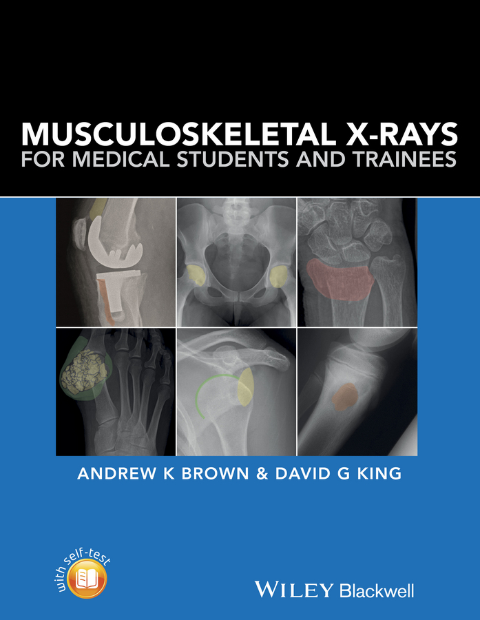 David King G. Musculoskeletal X-Rays for Medical Students and Trainees harold ellis clinical anatomy applied anatomy for students and junior doctors