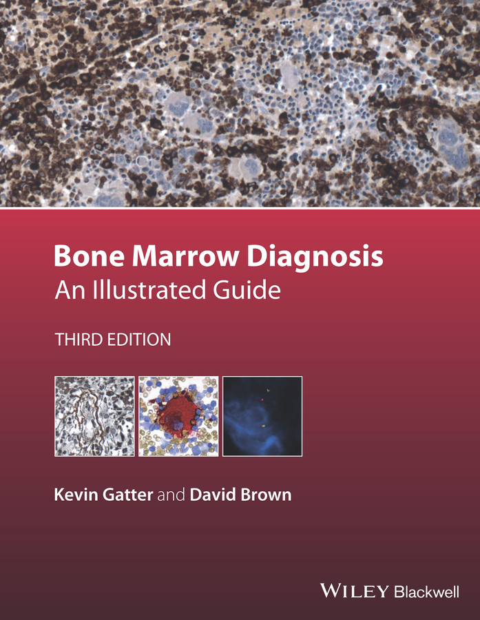 David Brown Bone Marrow Diagnosis. An Illustrated Guide jonathan bowling diagnostic dermoscopy the illustrated guide
