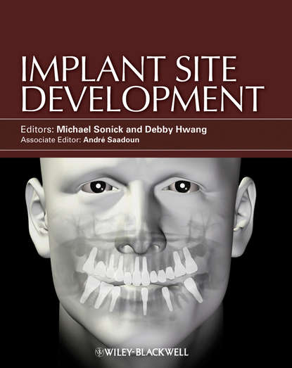 Sonick Michael Implant Site Development professional meego application development