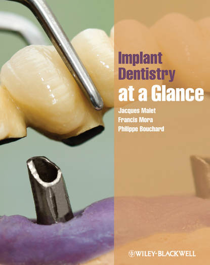 Jacques Malet Implant Dentistry at a Glance недорого