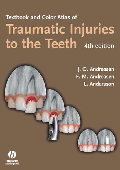 Lars Andersson Textbook and Color Atlas of Traumatic Injuries to the Teeth lars andersson essentials of oral and maxillofacial surgery