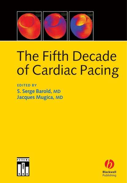 Фото - Jacques Mugica The Fifth Decade of Cardiac Pacing tom kenny the nuts and bolts of cardiac pacing
