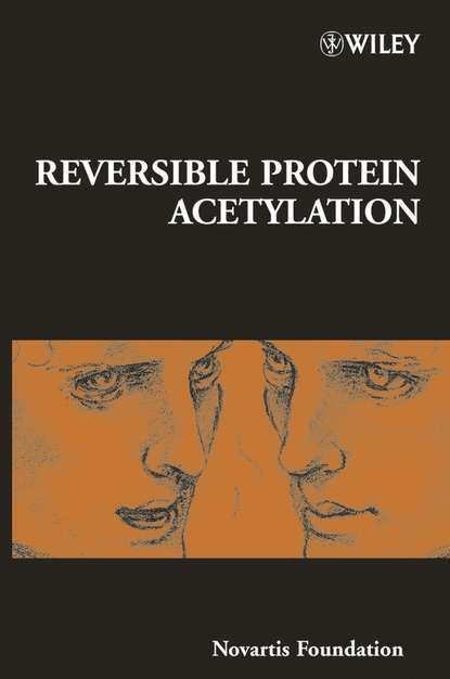 Gregory Bock R. Reversible Protein Acetylation final report from the study on water hammer in fire protection system