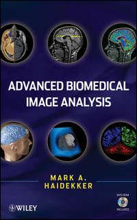 Книга Advanced Biomedical Image Analysis - Автор Mark Haidekker